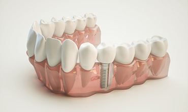 Patients in Tucson, AZ are discovering dental implants as a solution for dental health