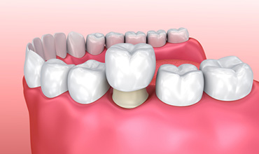 Understanding the procedure for tooth crowns in Tucson, AZ