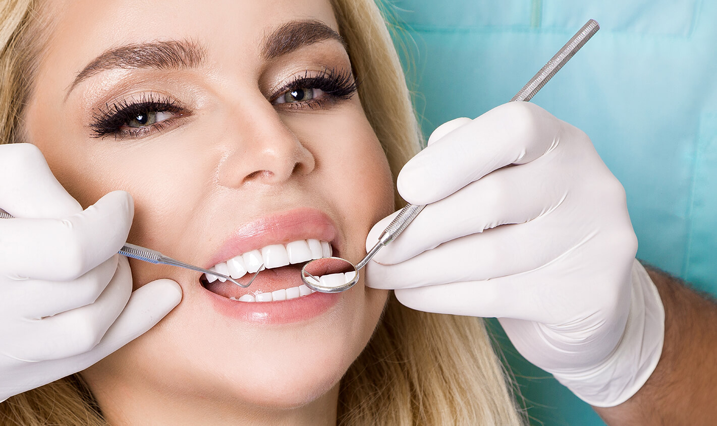 Individuals in Tucson, AZ Are Reaping the Benefits of Porcelain Veneers Applied by Dr. Colby Echols