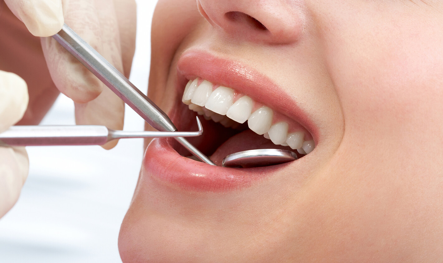 Why Dental Cleanings and Prevention Care is Critical to Long-Term Dental Health in Tucson, AZ