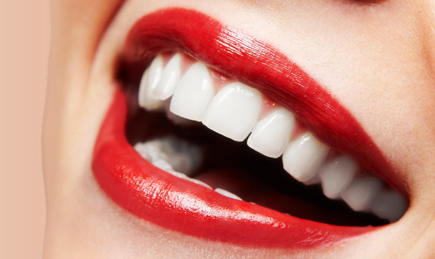 Understanding the Dental Veneers Process
